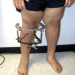 BMI does not drop after surgical realignment for Blount disease