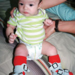 Gait analysis for clubfoot may reveal long-term issues