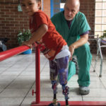 O&P teams treat limb loss, deformity in developing world