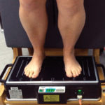 Whole body vibration boosts speed, stride length in toe-walkers