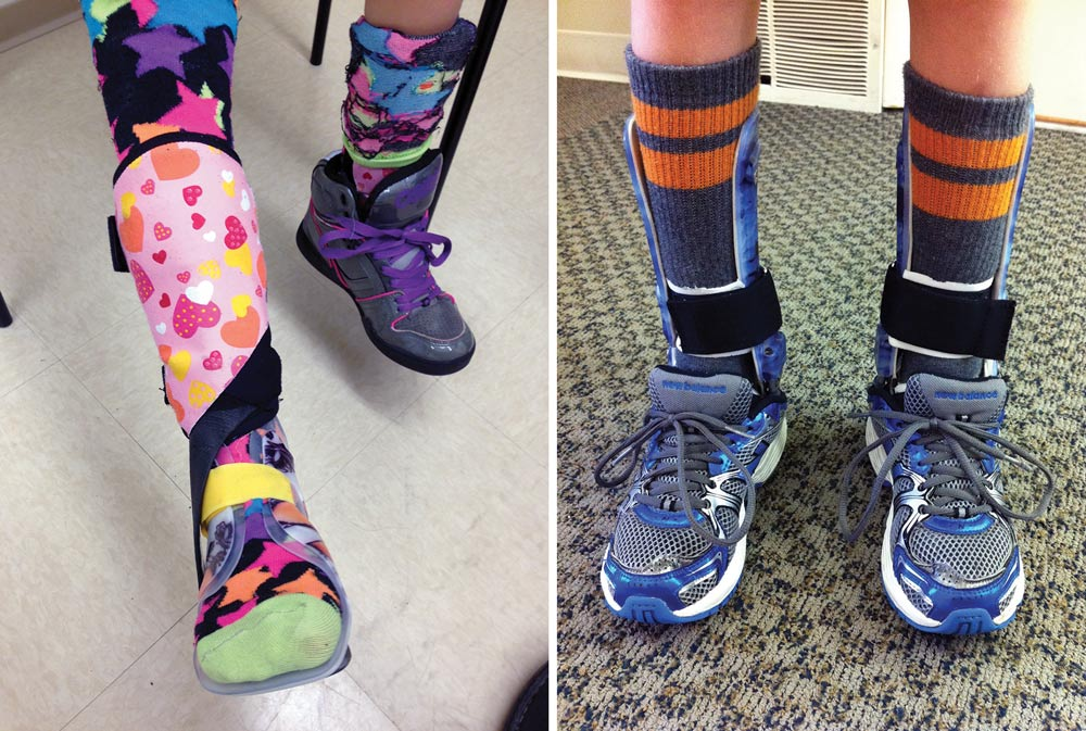 Measures of ankle weakness reveal varied CMT gait patterns ... Orthopedic Shoes For Kids With Afos