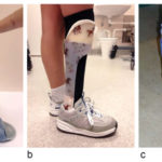 AFOs improve postsurgical gait in kids with spastic unilateral CP
